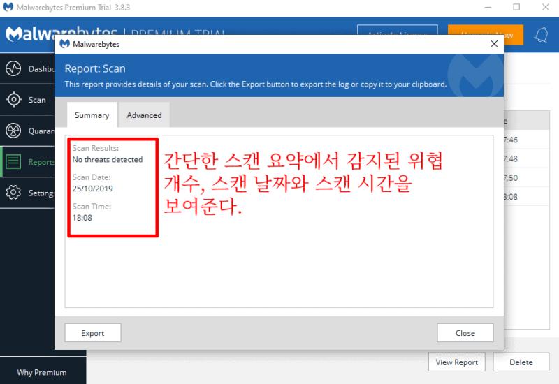 Malwarebytes 사용 편의성 및 설정